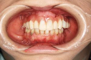 STEP4:仮歯の取り付け