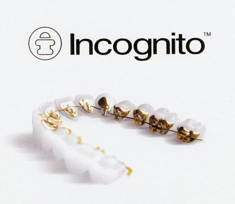 インコグニトとは