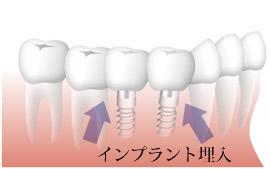 複数本の欠損歯