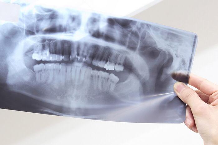 STEP5:シミュレーション・仮歯の製作
